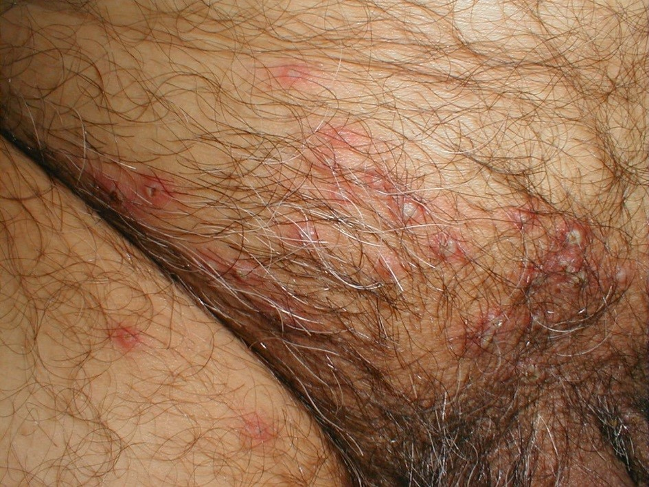 Small painful red spot on clitoris