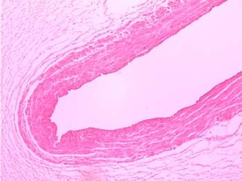 Umbilical Cord Histology Slide 7-Human umbilica...