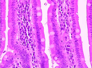 Slide 94-Human duodenum